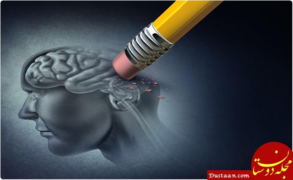 تشخیص بیماری آلزایمر با کمک آزمایش خون