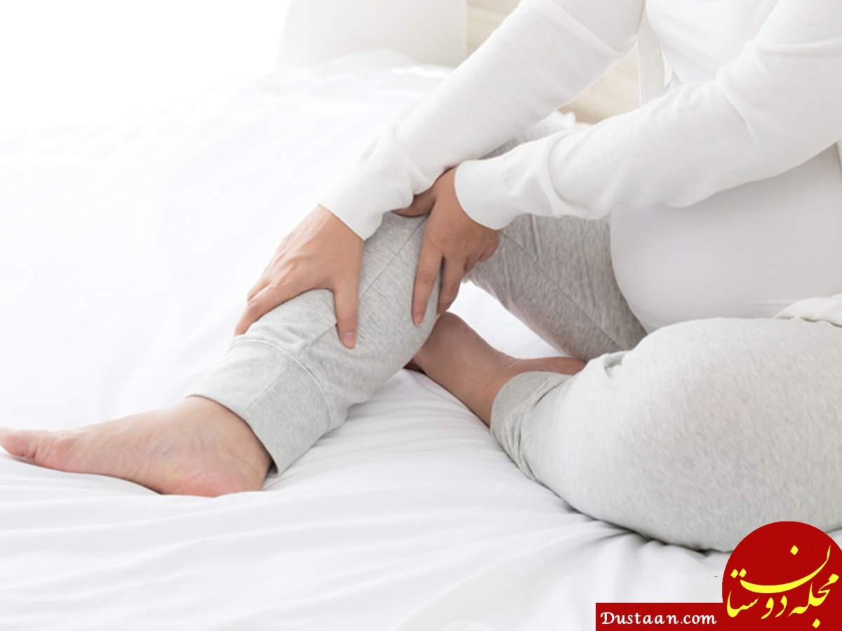 داغ شدن کف پا نشانه چه بیماری هایی است؟