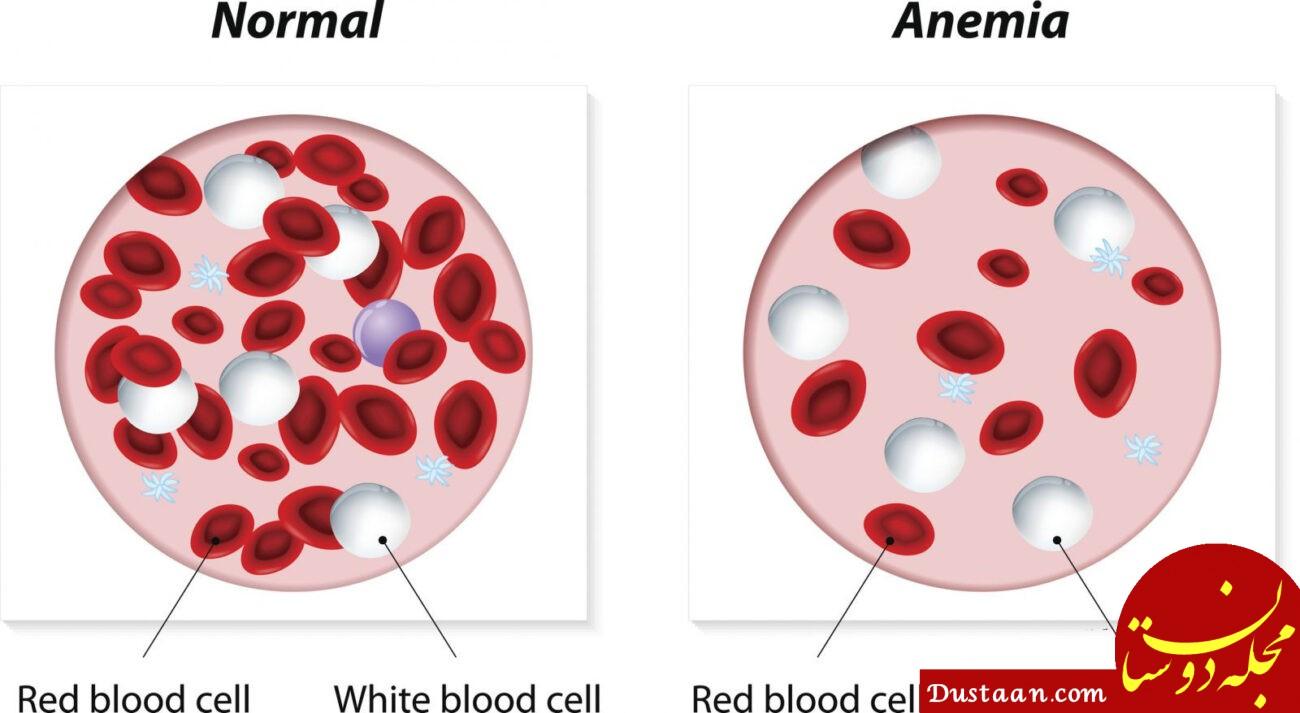 درمان کم خونی با کمک ترکیب های غذایی