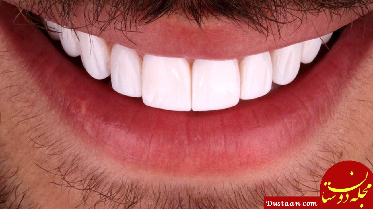 روش جدید برای درمان پیوره دندان