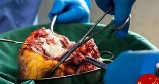 اعضای بدن جوان مرگ مغزی به 4 بیمار زندگی دوباره داد