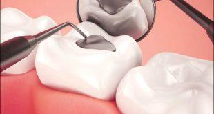 همه چیز درباره دندان های پر شده