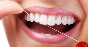 اهمیت نخ دندان در حفظ سلامت دندان ها