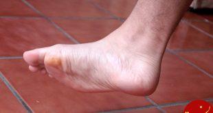 انواع ترک پا + عوامل ایجاد ترک پا