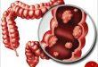 آشنایی با درمان شخصیسازی شده در سرطان روده