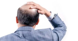 جدیدترین روش کاشت مو کدام است ؟ DHI یا Micro FIT