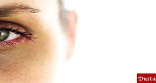 محو کبودی دور چشم با روش های خانگی