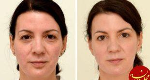 این زن ۳۰ روز چیزی جز آب ننوشید! +عکس