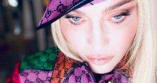 تغییر چهره خواننده مشهور هوادارانش را شوکه کرد +عکس