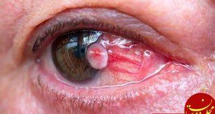 نشانه های ابتلا به سرطان چشم