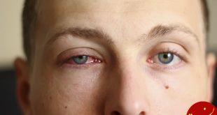 درمان ورم پلک به کمک طب سنتی