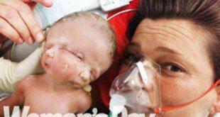 تولد دختری با دو صورت متفاوت در استرالیا، سوژه رسانه ها و شبکه های مجازی شده است.     سیمرغ: مادر استرالی...