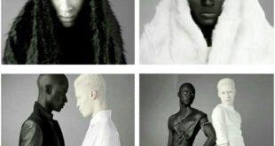 روشنترین و تیره ترین رنگ پوست دنیا در کنار هم!