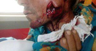 یک قلاده پلنگ به چوپان اهل روستای «سوار» بخش پیشکمر کلاله حمله و وی را زخمی کرد.  عصر پنجشنبه، یک قلاده پلنگ...